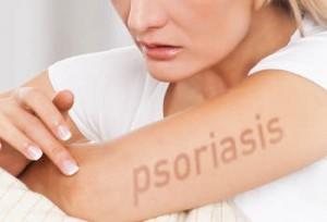 rimedinaturalipsoriasifototerapiamilanosimonavignali