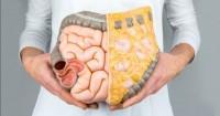 Sindrome del colon irritabile