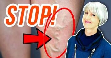 Stop gambe gonfie e vene varicose se fai questo