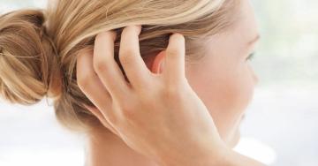 """""""Forfora"""" e prurito alla testa: potrebbe essere dermatite seborroica"""