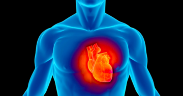 Il collegamento tra fritti e infarto dimostrato dalla scienza