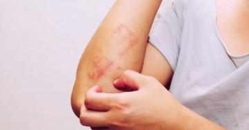 Questi sono i migliori rimedi naturali contro la dermatite da stress