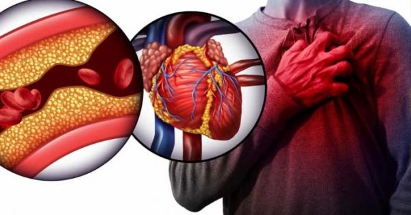Come liberarsi del colesterolo: i 7 cibi spazzini da consumare a tavola