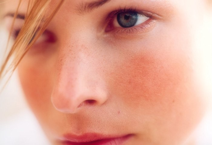 Rosacea: consulenza di Naturopatia ed Estetica Olistica®