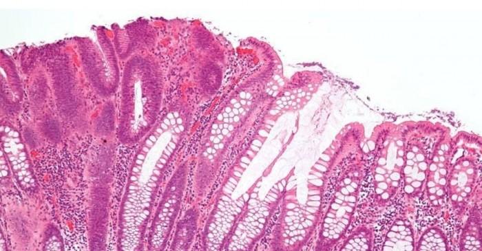 Tumore al colon: ridurre il rischio con la dieta in solo 2 settimane